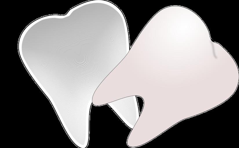 Prześliczne nienaganne zęby dodatkowo świetny prześliczny uśmiech to powód do dumy.